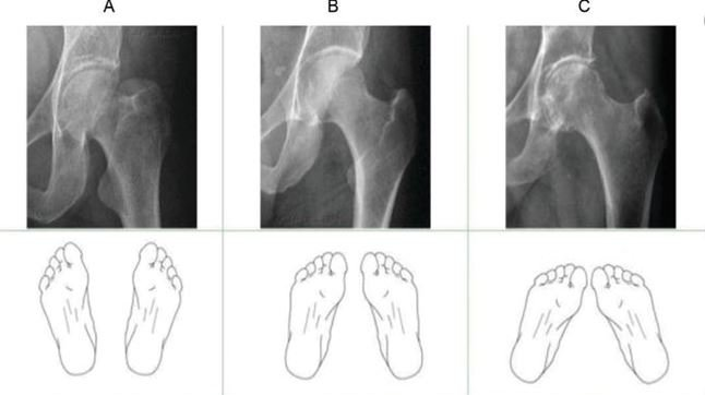 The effect of feet positioning to avoid foreshortening or elongation of the...