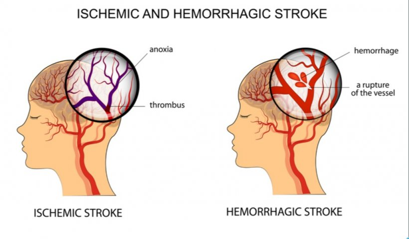 Major reduction in new strokes until 2030