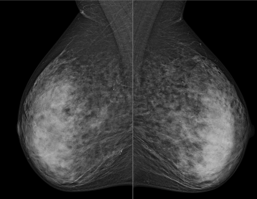 Digital mammography (MLO) without suspicous findings (BIRADS-2) in low...