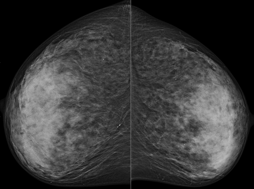 Digital mammography (CC) without suspicous findings (BIRADS-2) in low...