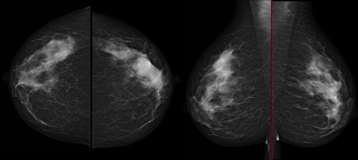 Bilateral mammography