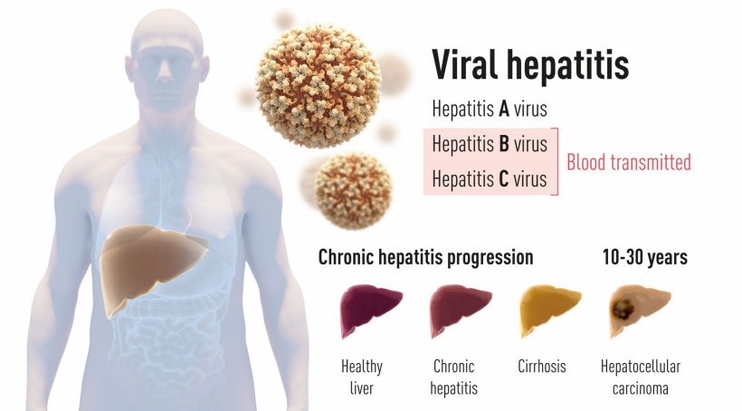 Figure 1: There are two main forms of hepatitis. One form is an acute disease...