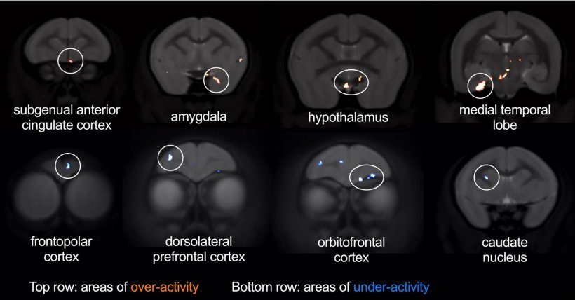 The researchers used brain imaging to explore other brain regions affected by...