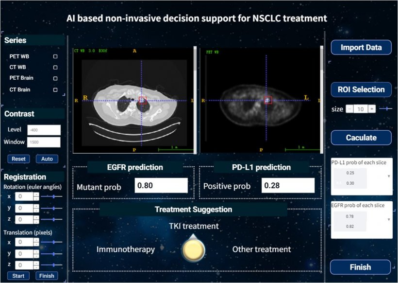 The graphical user interface of the AI based non-invasive treatment decision...