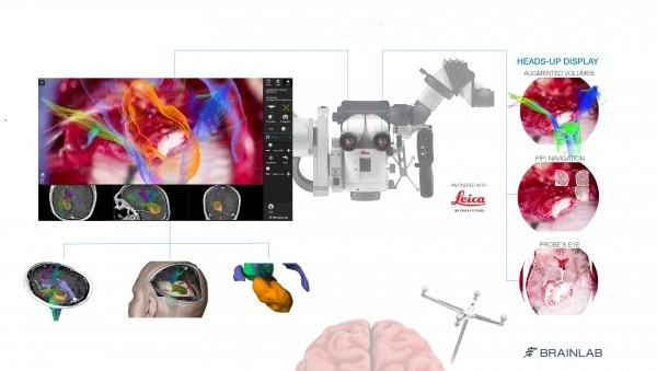 Mount Sinai Neurosurgeon First to Use Microscope Imaging System That Integrates...