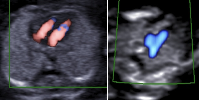 A basic heart exam in the first trimester using colour Doppler and/or...