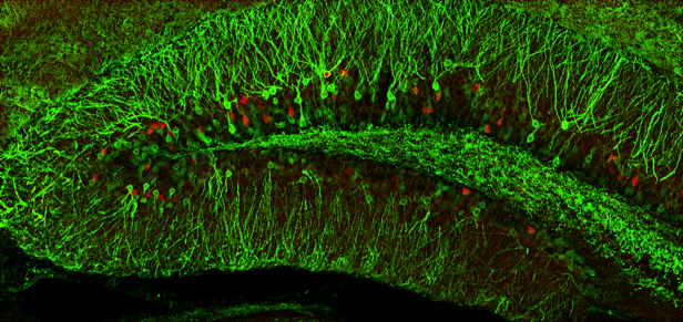 A red dye marks neurons involved in the retrieval of a memory