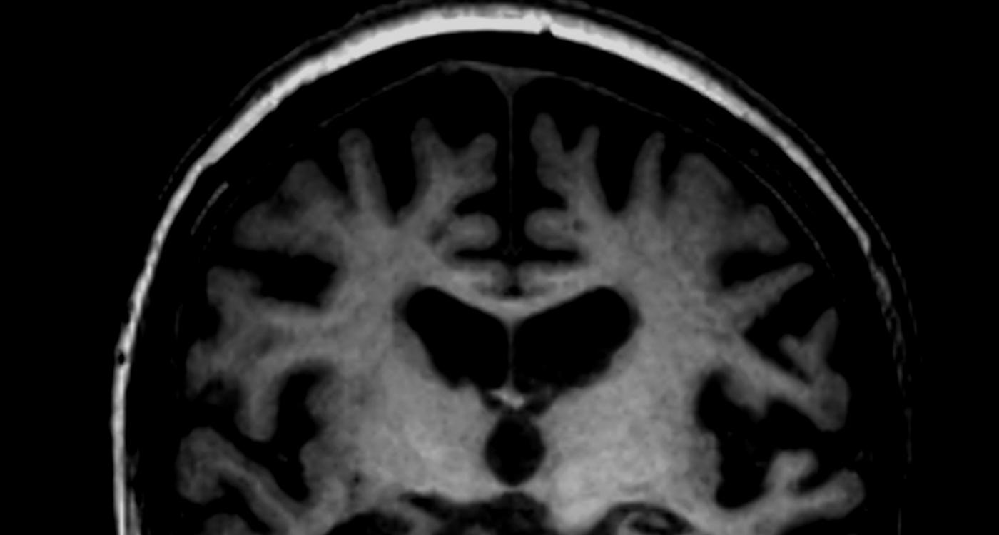Alzheimer-Prognose: Die Hoffnung bleibt auf healthcare-in-europe.com