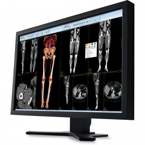 monitor showing medical images