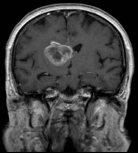 mri scan of brain with glioblastoma