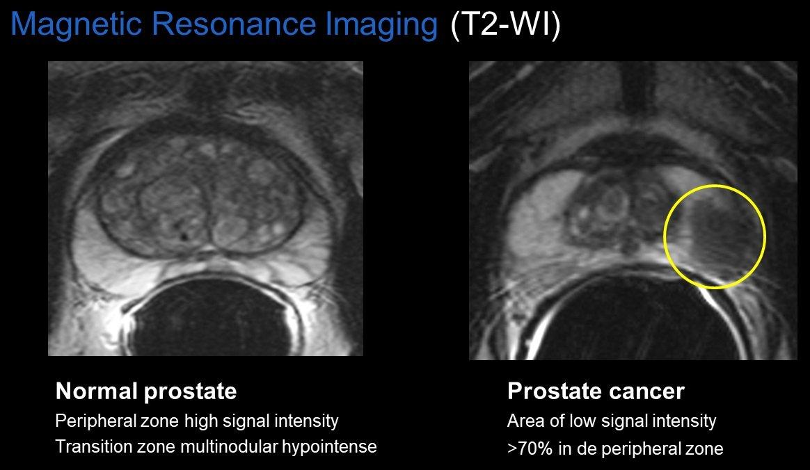 prostate gland tumors mri