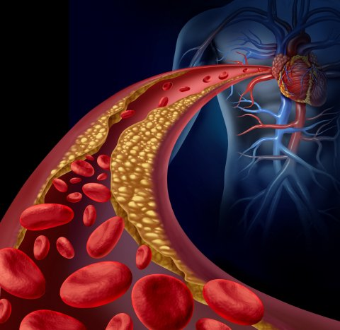 Clogged artery and atherosclerosis disease medical concept with a three dimensional human artery with blood cells that is blocked by plaque buildup of cholesterol as a symbol of vascular diseases