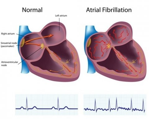 normal heart rhythm and atrial fibrillation comparison