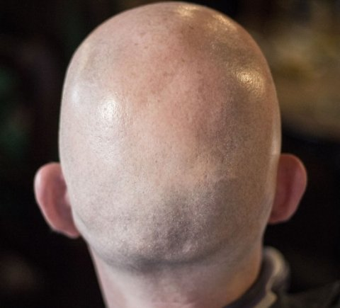 back of a bald man's head