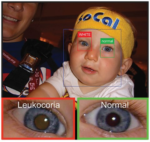 app-based detection of pediatric eye disease