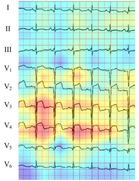 ecg diagram with heatmap
