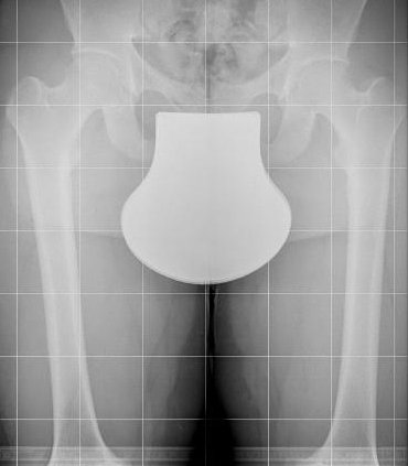 xray of lower extremities with cover from radiation shield