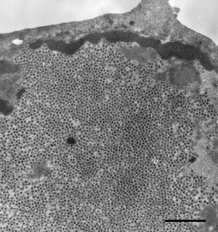 papillomavirus ursachen)