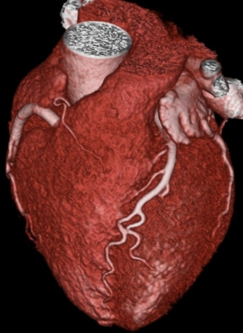 image of a heart.