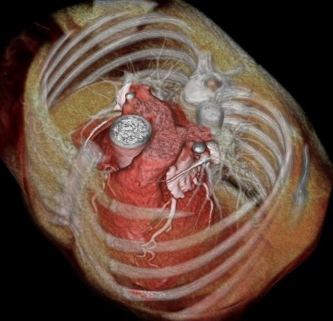 Cardiac CT with 3D reconstruction of the chest.