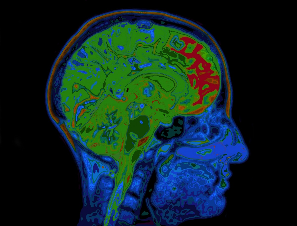 Mapping brain connectivity with MRI may predict cardiac arrest ...