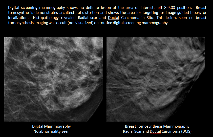 tomosynthesis mammography Raleigh radiology is a proven leader in breast imaging in the triangle we are proud to be the first to offer 3d breast tomosynthesis mammography, advanced 3 dimensional breast imaging, for the earliest detection of breast cancer.