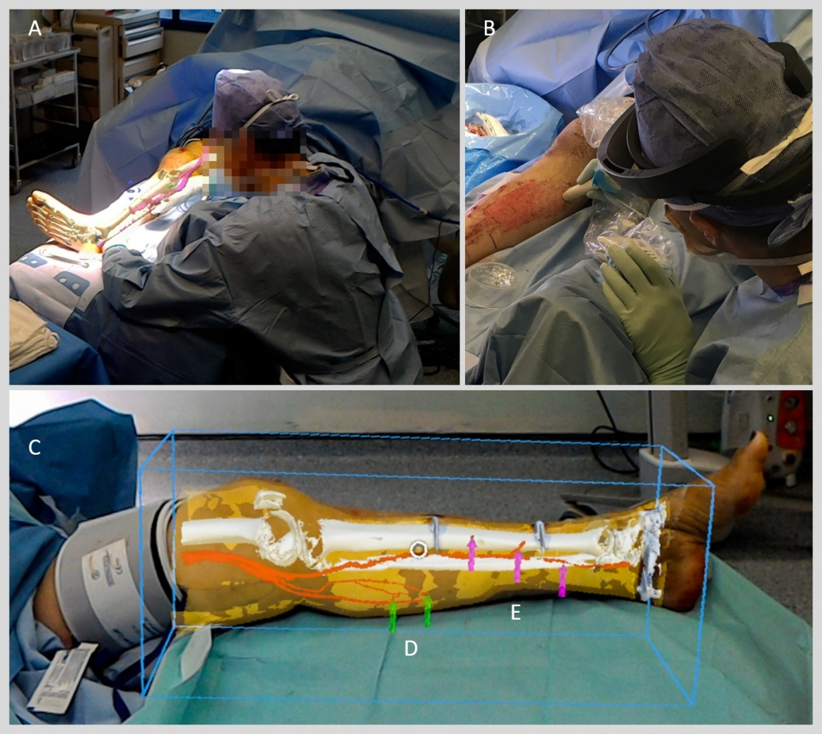 Augmented reality lets surgeons 'see' inside limbs
