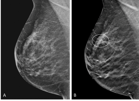 Additional Cancer Screening For Women With Dense Breasts