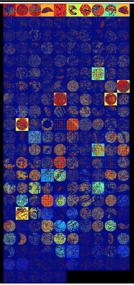 tissue microarrays heat maps