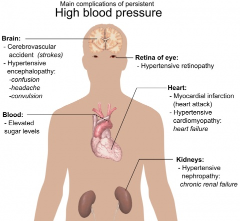 Main complications of high blood pressure