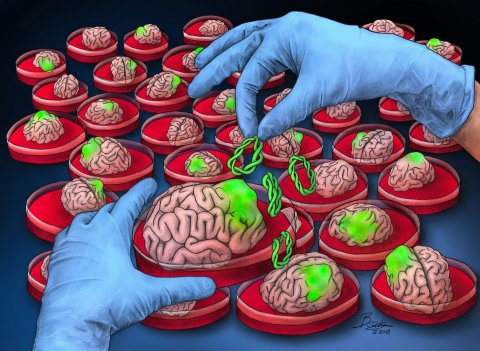 Illustration of person with blue lab gloves creating brain tumors in petri dishes