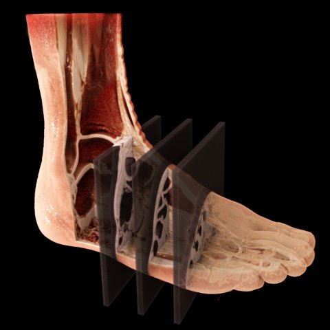MRI scan of foot with simultaneous multi slice technology
