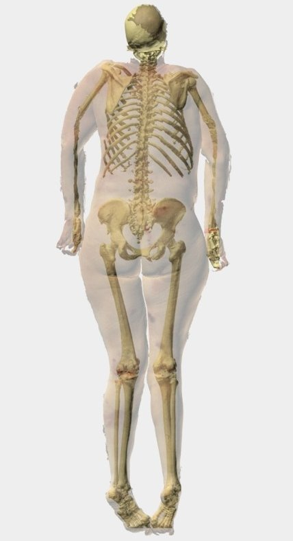 3d and ct fusion imagin of a human body