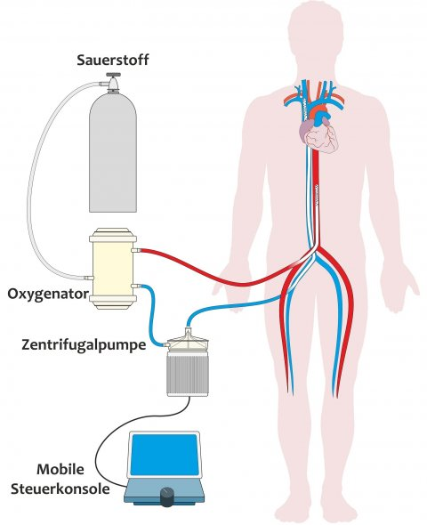 schematic of a heart lung apparatus
