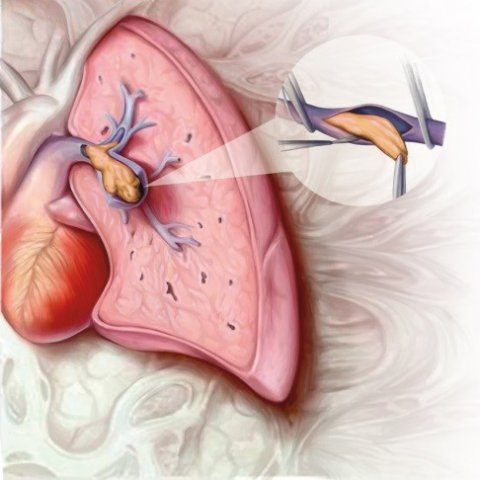 illustration of cteph chronic lung disease